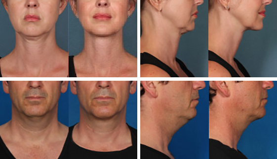 Before and After results provided by Kybella™