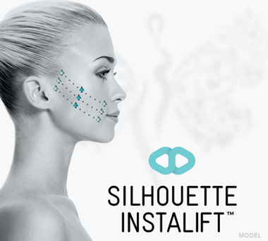 Silhouette InstaLift