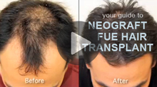 Video: Your Guide to Neograft FUE Hair Transplant